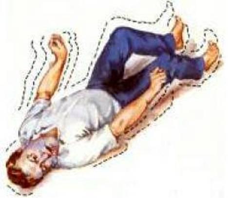 20120524205437-epilepsia.jpg